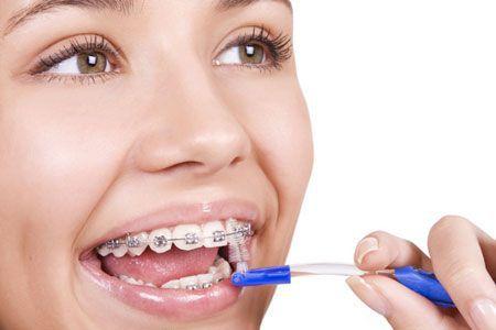 bàn chải kẽ răng