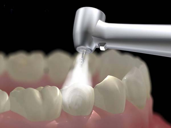 Đau nhức răng hàm dưới chữa trị như thế nào?