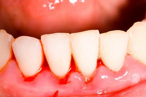 Nướu răng hay bị chảy máu là triệu chứng của bệnh gì?