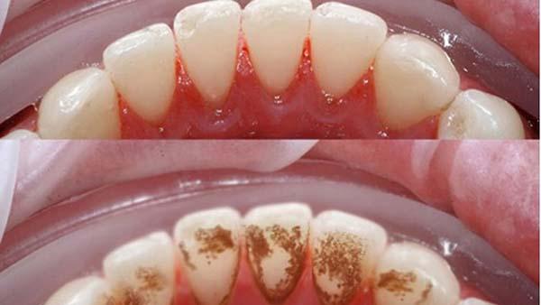 Nguyên nhân khiến nướu răng hay bị chảy máu
