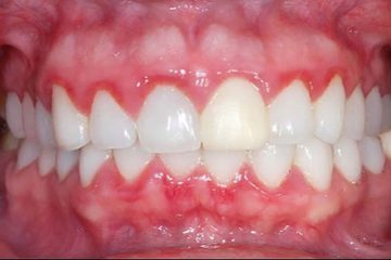 Cách chữa trị sưng nướu răng tại nhà