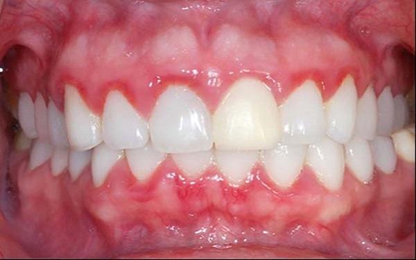 Cách giảm sưng nướu răng