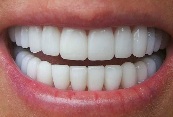 Cấu trúc răng miệng ảnh hưởng đến việc sâu răng