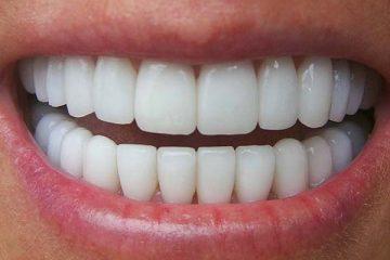 Đau nhức răng cửa do đâu? Cách chữa trị đau nhức răng cửa