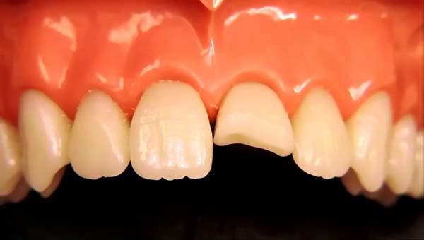 Ê buốt răng cửa hàm dưới