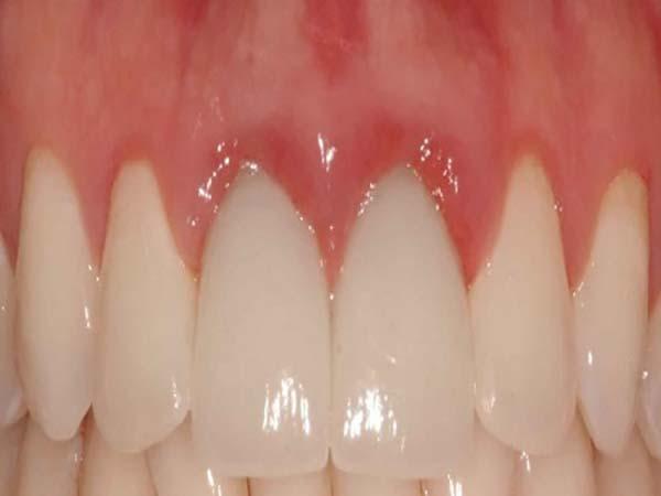 viêm nướu răng sứ