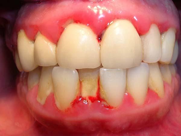 Viêm lợi cũng là nguyên nhân gây sưng lợi răng hàm