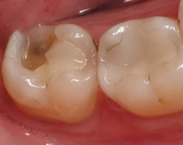 Bị nhức răng hàm dưới do răng bị chấn thương