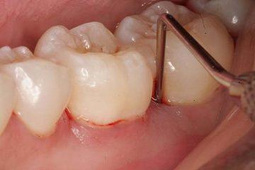 Cách chữa sưng lợi răng hàm tại nhà