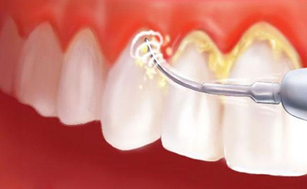 Sưng nướu răng điều trị bằng cạo cao răng