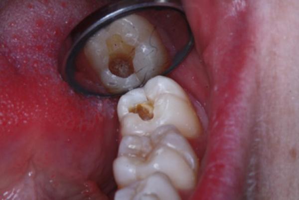 Răng khôn bị sâu nguyên nhân do đâu?