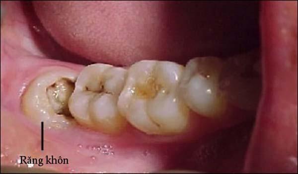 Răng khôn bị sâu có nên nhổ bỏ hay không?