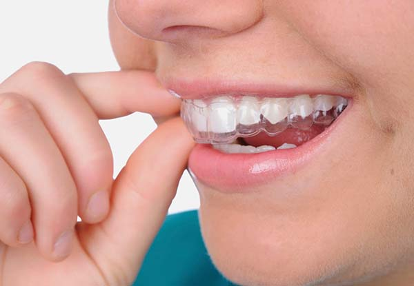 Sử dụng máng dụng cụ chống nghiến răng
