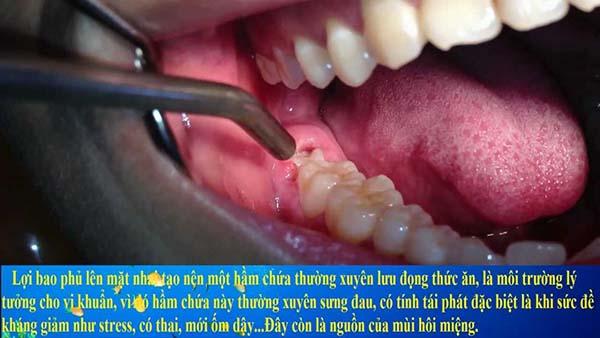 Sưng nướu răng trong cùng do lợi trùm răng khôn