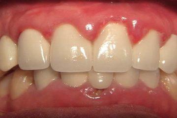 Bị sưng nướu răng làm thế nào để điều trị triệt để?