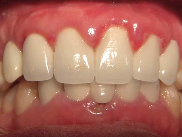 Bị sưng nướu răng làm thế nào?