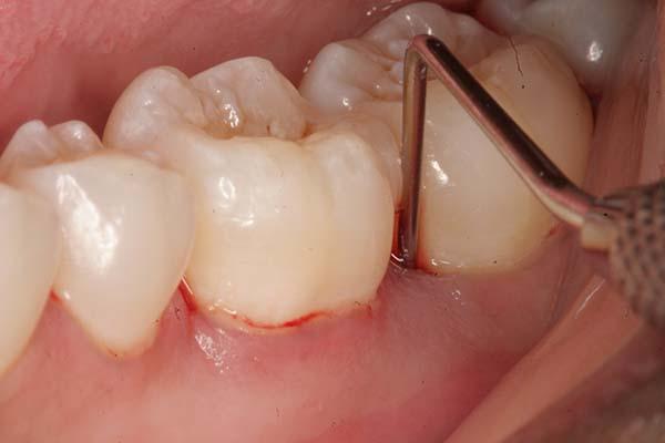 Bị nhức răng hàm dưới do viêm nướu răng