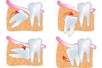 Biến chứng sau khi nhổ răng khôn bạn cần biết!