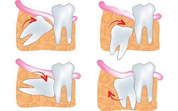 Không nhổ răng khôn có sao không khi răng mọc ngầm