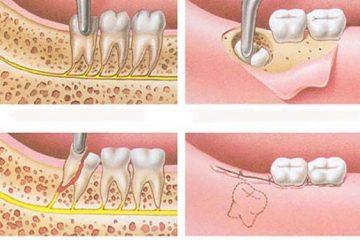 Giải đáp: Nhổ răng khôn hàm dưới có nguy hiểm không?