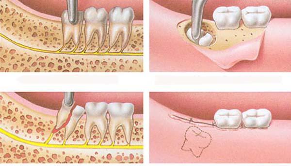 Biến chứng sau khi nhổ răng khôn tổn thương dây thần kinh