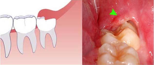 sưng lợi triệu chứng mọc răng khôn
