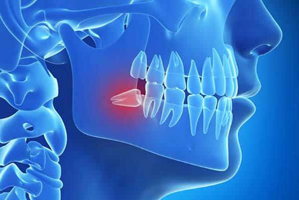 Không nhổ răng khôn có sao không?