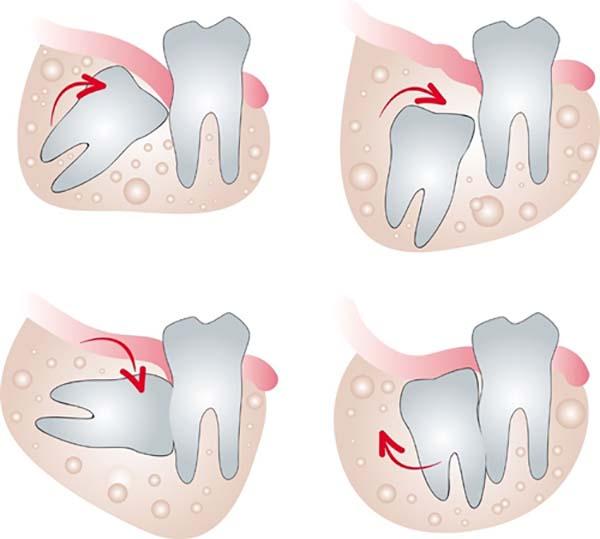 Triệu chứng mọc răng khôn bạn cần biết