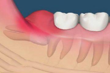 Mọc răng khôn nên làm gì?