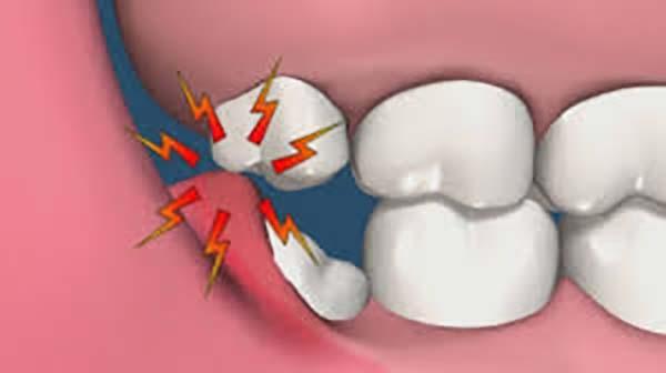 Răng khôn mọc ngầm nên làm gì