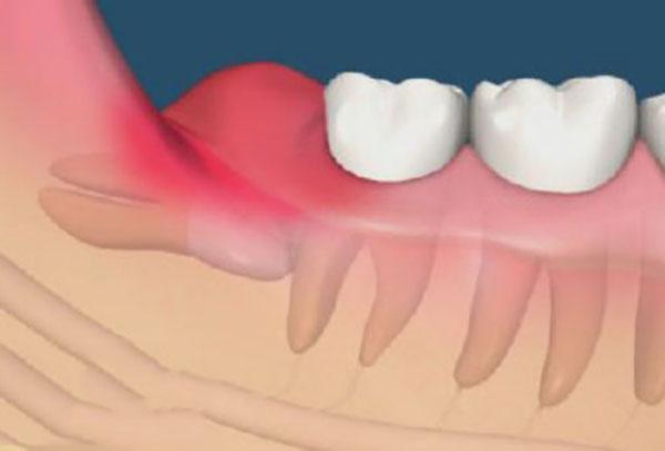Kết quả hình ảnh cho hay các răng mọc ngầm trong xương gây