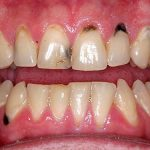 Nhức chân răng do đâu? Cách điều trị nhức chân răng