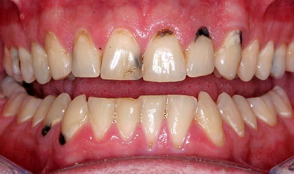 Nhức chân răng do đâu? Cách chữa trị nhức chân răng