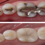 Răng bị ê buốt sau khi trám phải làm sao?