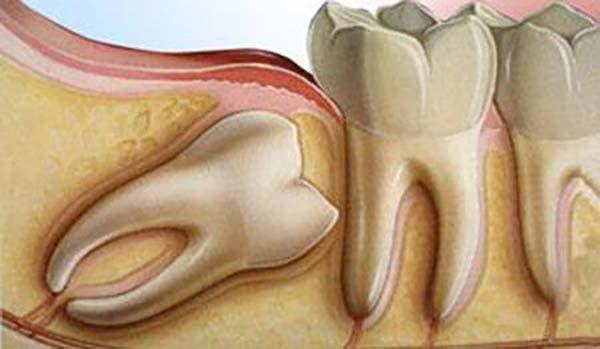Răng khôn hàm trên mọc lệch ra má