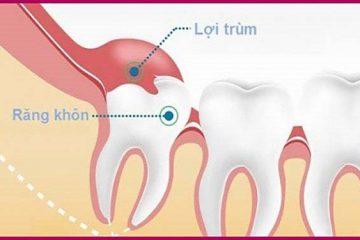 Sưng lợi mọc răng khôn – Cách chữa sưng lợi khi mọc răng khôn