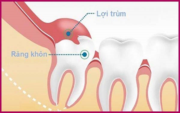 Nhức răng cấm do răng mọc lệch, mọc ngầm