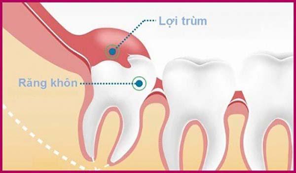 Sưng lợi khi mọc răng khôn