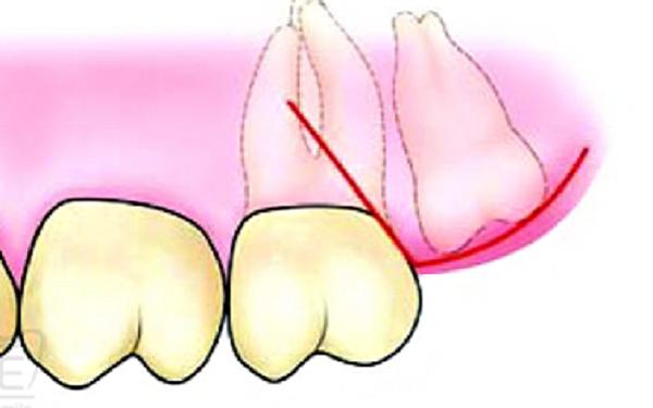 Nhổ răng khôn hàm trên mọc ngầm có nguy hiểm không?