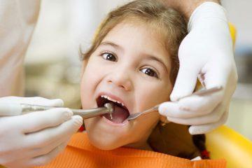 Điều trị tuỷ ở trẻ em có thực sự cần thiết?
