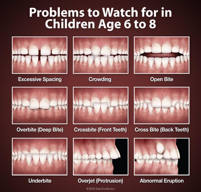 Những vấn đề sai lệch răng thường gặp ở trẻ