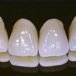 Vệ sinh răng miệng khi mang phục hình răng
