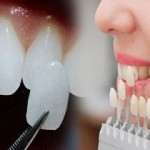 """Hỏi đáp: """"Làm răng giả có nguy hiểm không?"""""""