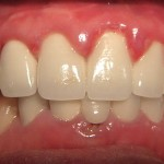 3 nhược điểm của răng giả mà bạn cần biết