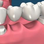 Những kiến thức cơ bản về răng giả cố định