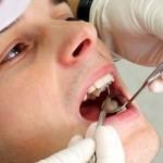 Tư vấn – khi nào cần điều trị tủy răng