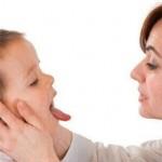 Mách bạn 4 loại thuốc chữa trị nấm lưỡi cho trẻ em