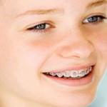 Khi nào trẻ nên bắt đầu điều trị chỉnh nha?