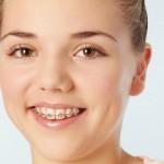 Những điều cần biết trước khi quyết định niềng răng thẩm mỹ