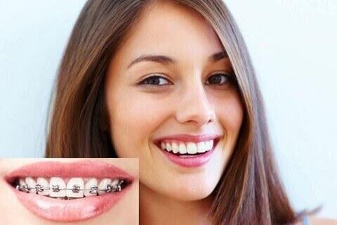 Niềng răng là gì? Niềng răng có những thay đổi gì?